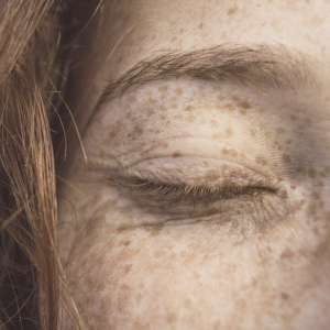 Detailed Skin Consultation